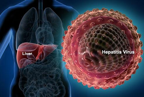 karaciğer Hepatitler